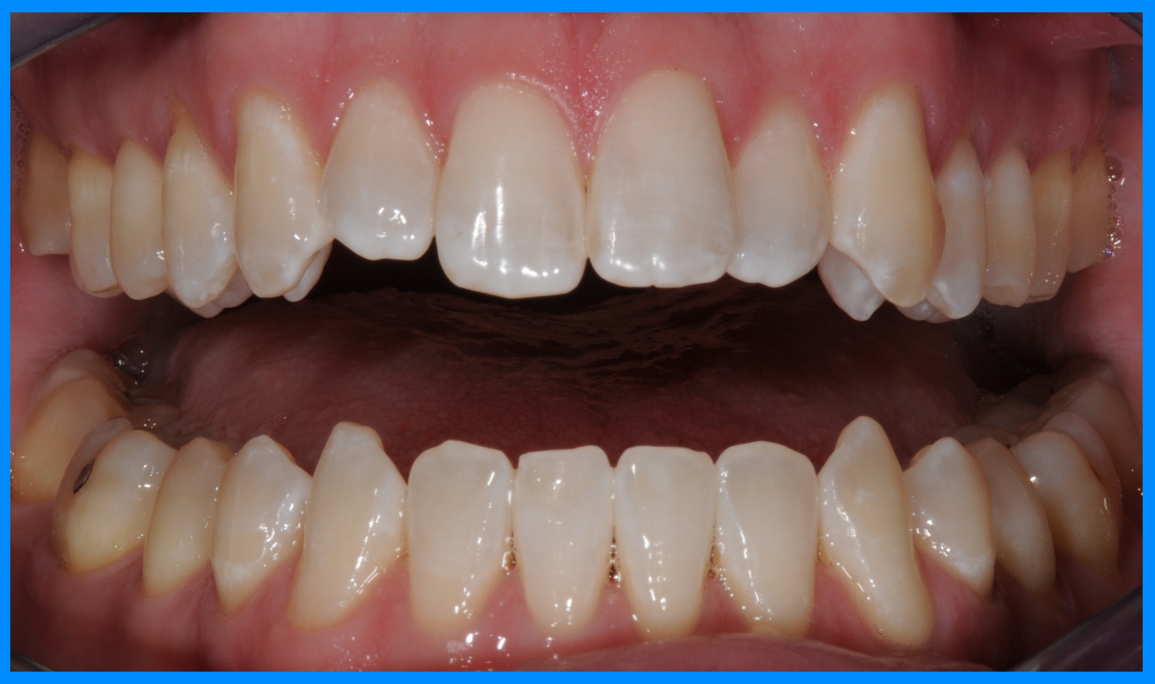 brevard county teeth whitening after