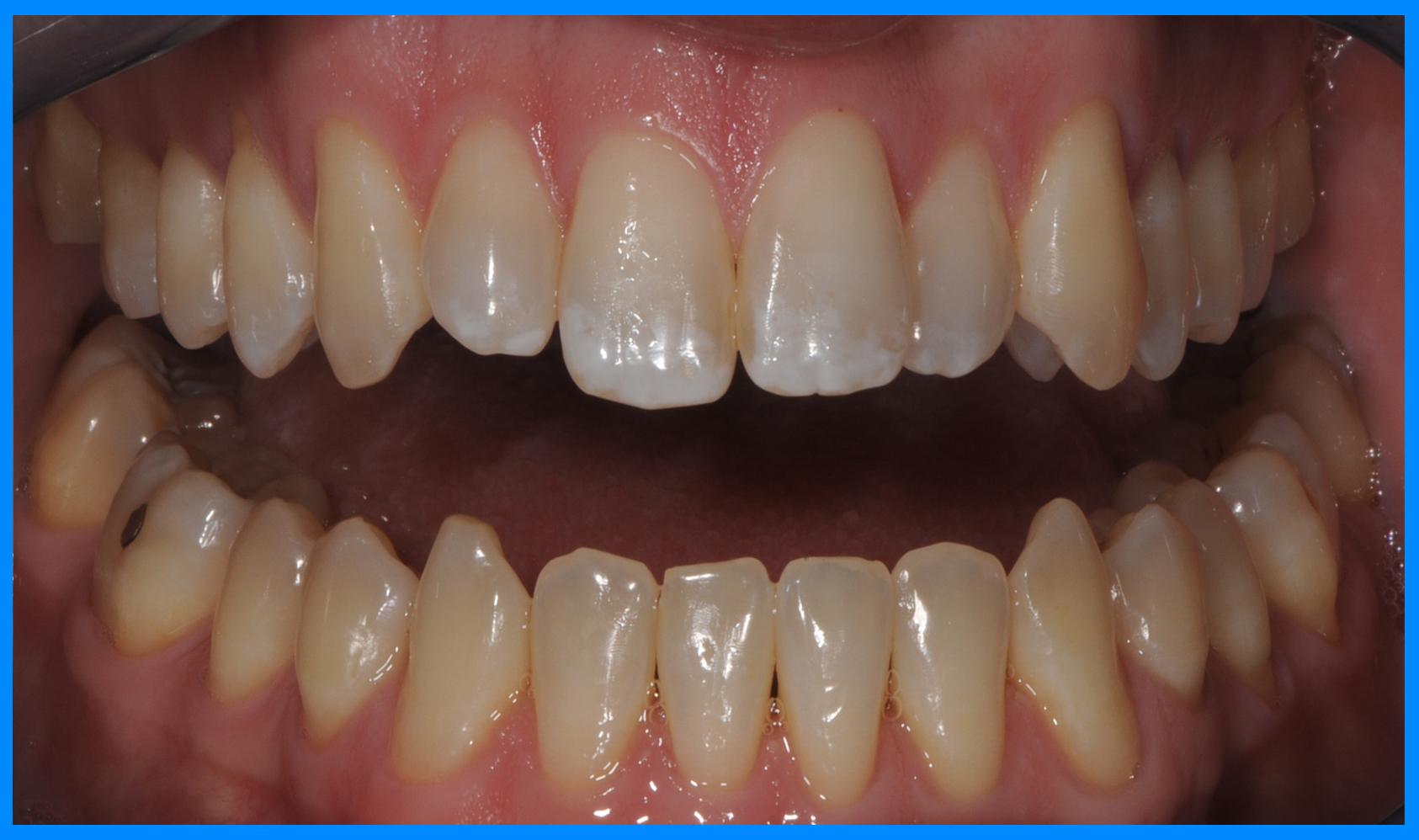 brevard county teeth whitening before